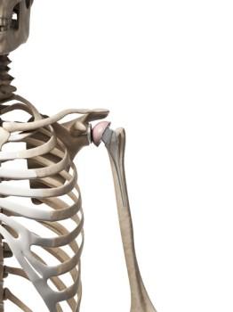 Revision Shoulder Surgery
