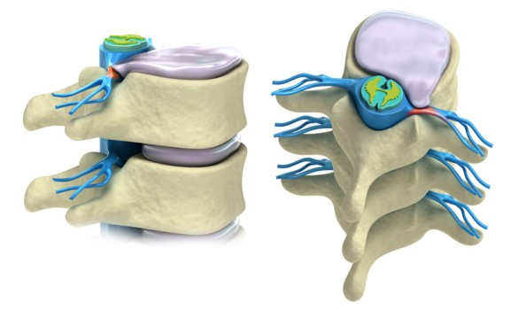 Spinal Disc Replacement Surgery