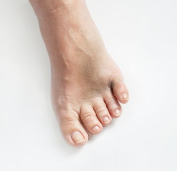 Toe Joint Replacement