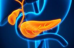 Laparoscopic Gallbladder Removal