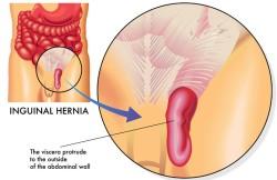 Laparoscopic Inguinal-Femoral Hernia Repair