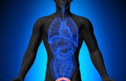 Laparoscopic Radical Cystoprostatectomy