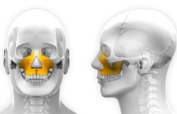 Hydroxyapatite Augmentation of the Maxilla