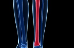 Intramedullary Nailing of the Tibia
