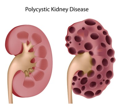 Kidney Cyst Decortication