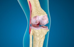 Knee Synovectomy