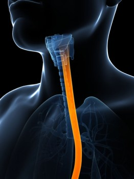 Esophageal Resection