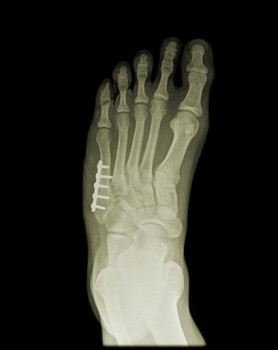 External Fixation of the Foot