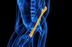 External Fixation of the Ulna