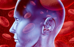 Extracranial-Intracranial Revascularization