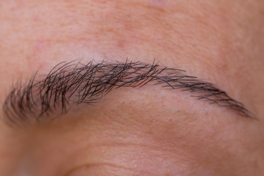 Eyebrow Replacement