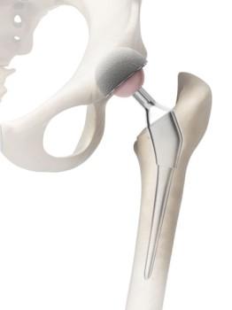 Hip Resurfacing