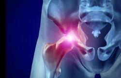 Hip Amputation
