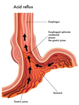 Gastroesophageal Reflux Surgery