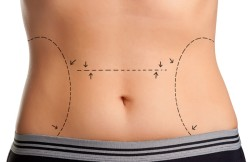 High Lateral-Tension Abdominoplasty