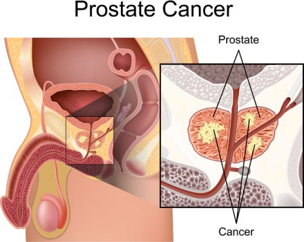 High Dose Rate Brachytherapy for Prostate Cancer