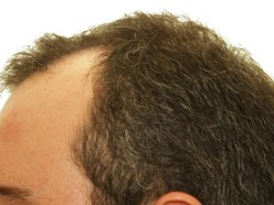 Taking Steps Following Hair Loss