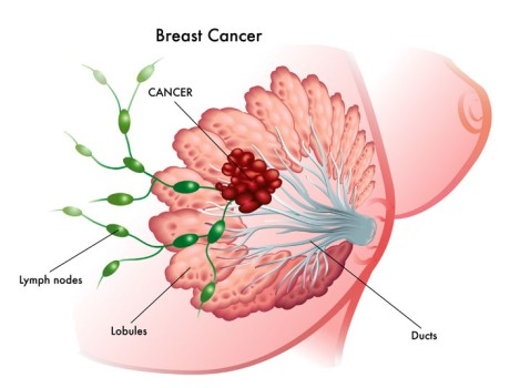 High Dose Rate Brachytherapy for Breast Cancer
