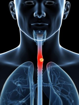 High Dose Rate Brachytherapy for Esophageal Cancer