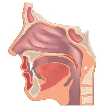 High Dose Rate Brachytherapy for Oropharyngeal Cancer