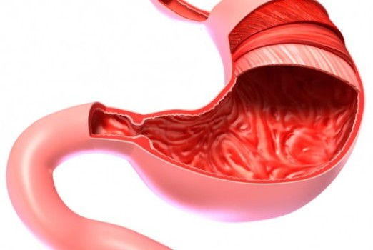Laparoscopic Gastrectomy