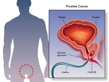 Low Dose Rate Brachytherapy for Prostate Cancer by OrangeCountySurgeons.org - 2