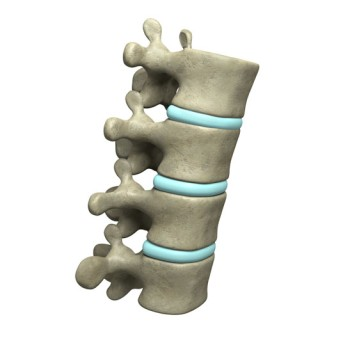 Lumbar Laminectomy by OrangeCountySurgeons.org - 2