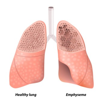 Lung Volume Reduction Surgery by OrangeCountySurgeons.org - 2