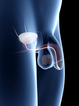 Marshall-Marchetti-Krantz Procedure for Bladder Neck Suspension by OrangeCountySurgeons.org - 2