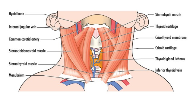 Middle-Third Sternocleidomastoid Release by OrangeCountySurgeons.org - 2