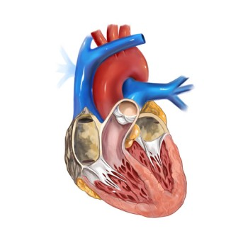 Mitral Valve Replacement Surgery by OrangeCountySurgeons.org - 2