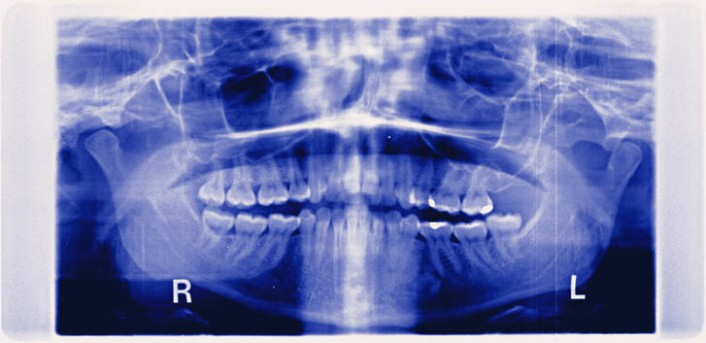 Partial Temporomandibular Joint Replacement by OrangeCountySurgeons.org  (2)