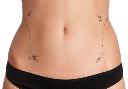 Abdominal Liposuction by OrangeCountySurgeons