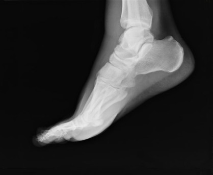 Ankle Replacement by OrangeCountySurgeons