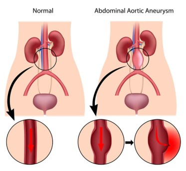 Aortic Aneurysm Repair by OrangeCountySurgeons