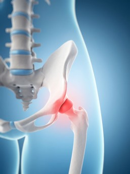 Arthroscopic Hip Replacement by OrangeCountySurgeons