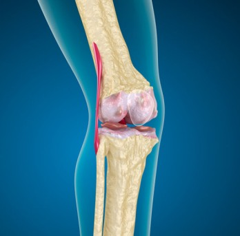 Arthroscopic Knee Fusion by OrangeCountySurgeons