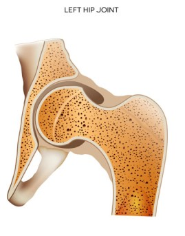 Arthroscopic Partial Hip Replacement by OrangeCountySurgeons