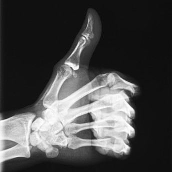 Arthroscopic Thumb Fusion by OrangeCountySurgeons