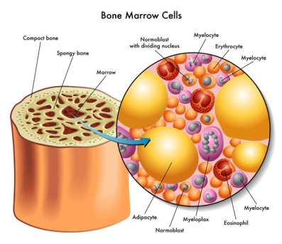 Bone Marrow Biopsy by OrangeCountySurgeons