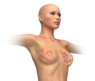 Breast Reduction by OrangeCountySurgeons
