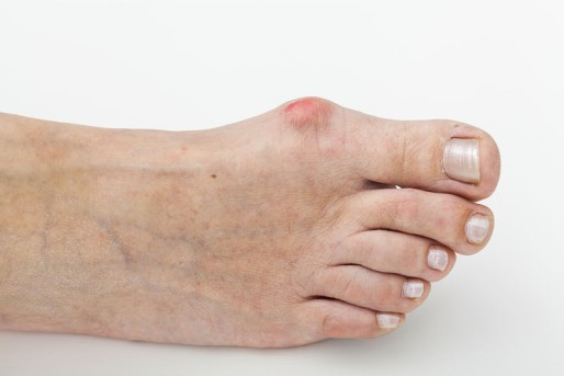 Bunion Correction by OrangeCountySurgeons