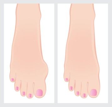Bunion Surgery by OrangeCountySurgeons