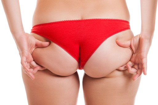 Buttocks Liposuction by OrangeCountySurgeons