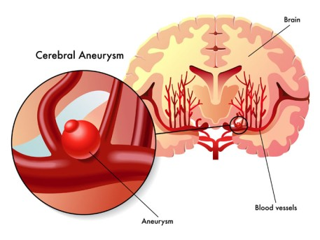 Cerebral Aneurysm Repair by Endovascular Embolization by OrangeCountySurgeons