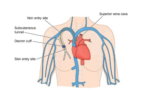 Central Venous Catheter Placement by OrangeCountySurgeons