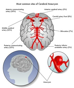 Cerebral Aneurysm Repair by Clipping by OrangeCountySurgeons