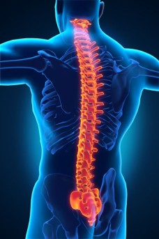 Cervical Spine Fusion by OrangeCountySurgeons