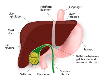 Common Bile Duct Exploration by OrangeCountySurgeons