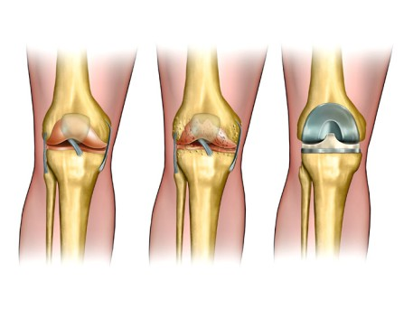 Computer-Assisted Robotic Total Knee Replacement by OrangeCountySurgeons